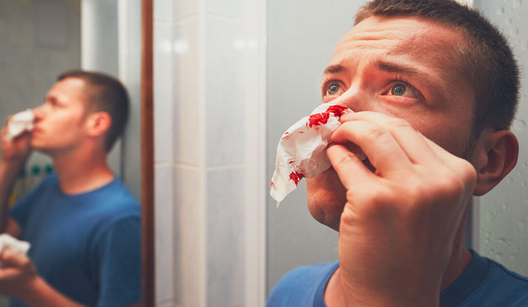 How to Stop a Nosebleed – First Aid Best Practices